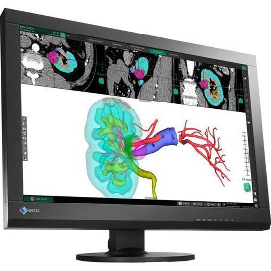 "Picture of EIZO RadiForce MX242W 2.3MP 61cm (24.1"") Color LCD Monitor"